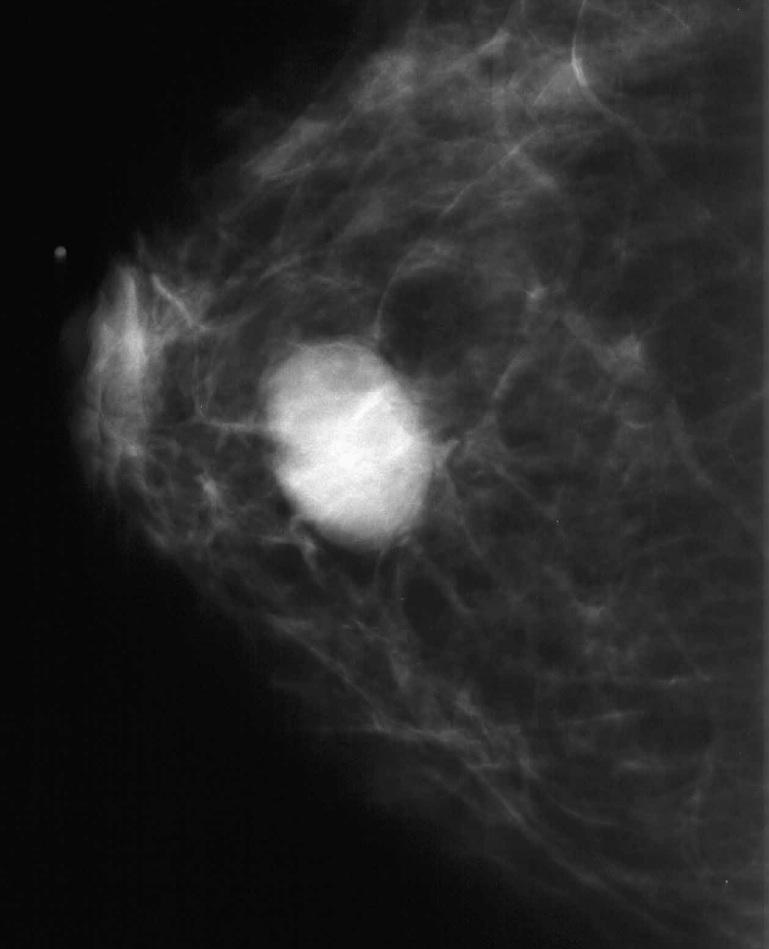 Phyllodes Tumor Mammogram Cc (figure 6b) mammograms.: imgarcade.com/1/phyllodes-tumor-mammogram