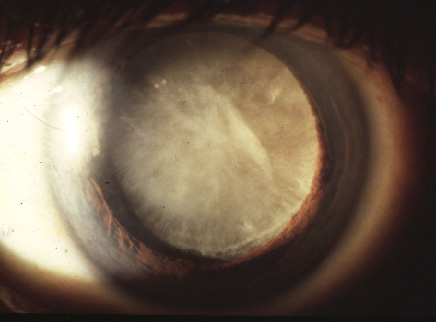 steroid induced cataract surgery