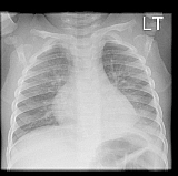 Paediatric Chest X-ray Quiz