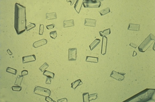 amorphous urate crystals in urine. The pH of the urine specimen