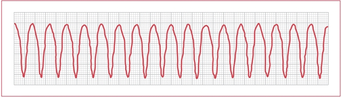 photo regarding Printable Ekg Strips referred to as The Greatest ECG Technician Certificate Take a look at - ProProfs Quiz