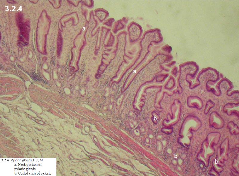 Papillae Coronae Glandis