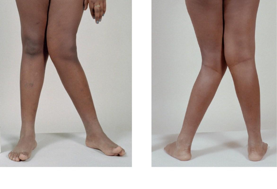 The Knee Joint Quiz Proprofs Quiz