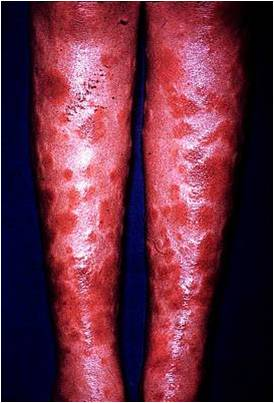 Pharm- Opportunistic Infections Pic Quiz