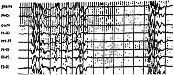 To yze every patient s eeg looking for burst suppression patterns