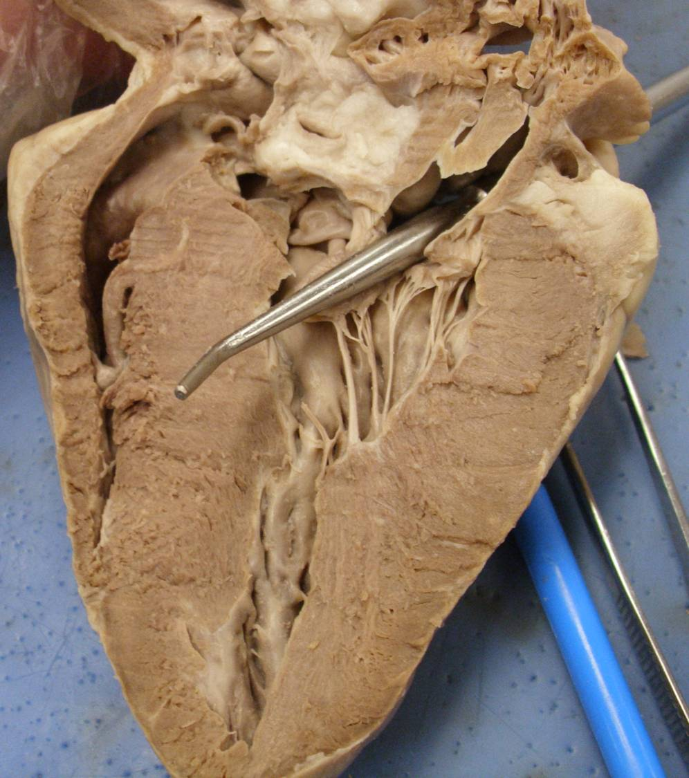 worksheet Sheep Heart Dissection Worksheet heart model sheep practice quiz proprofs name the first chamber that probe passes through as it enters heart