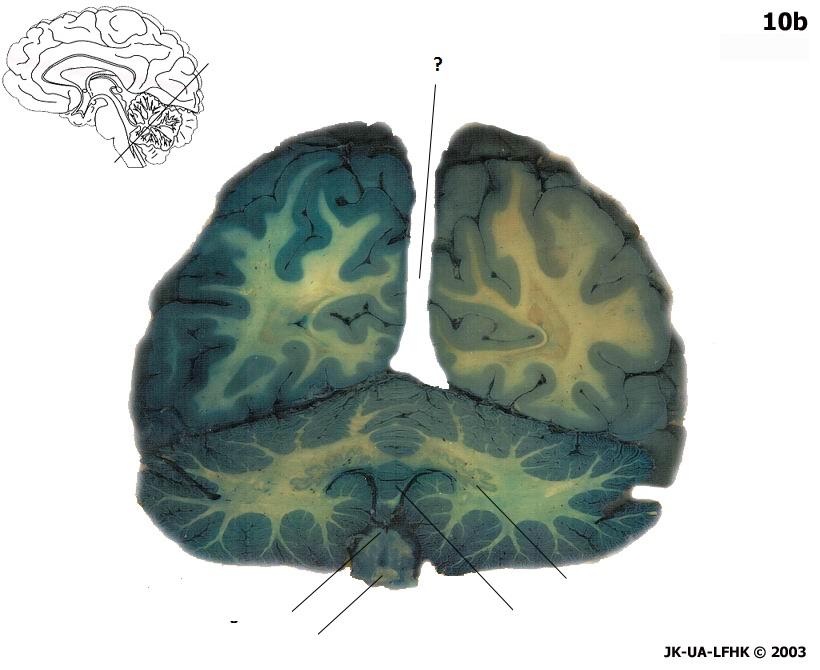 Brain Topography Frontal 8 - ProProfs Quiz