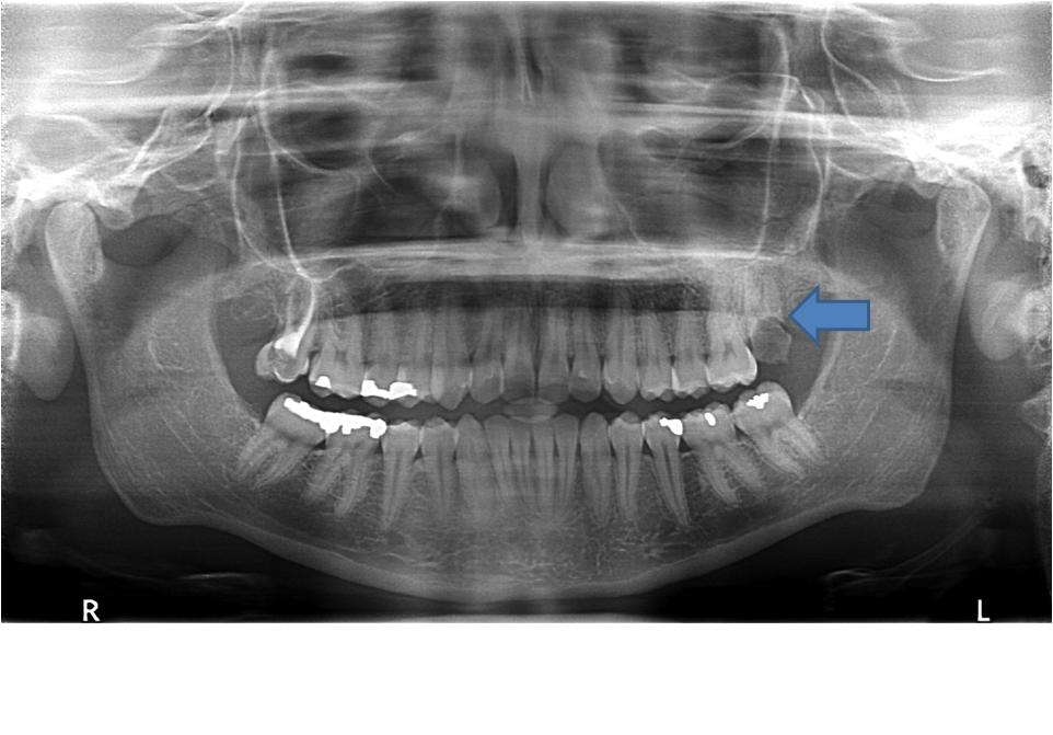 Identifying Tooth Numbers - ProProfs Quiz