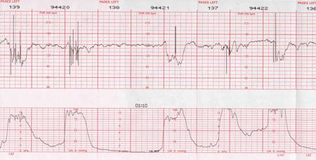 Interpretation Of Fetal Heart Monitoring - ProProfs Quiz