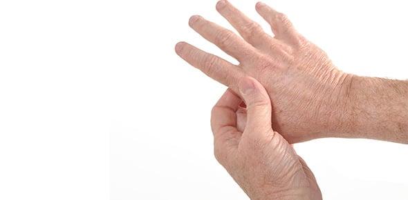 arthritis Quizzes & Trivia