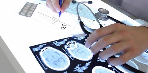 epilepsy Quizzes & Trivia