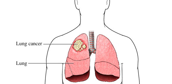 Lung cancer Quizzes, Lung cancer Trivia, Lung cancer Questions