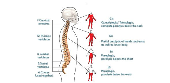 Top Spinal Cord Injury Quizzes, Trivia, Questions & Answers ...