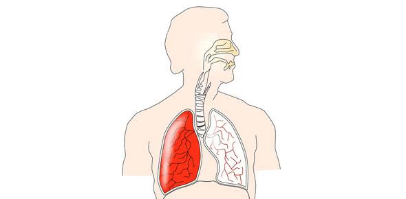 pulmonary Quizzes & Trivia