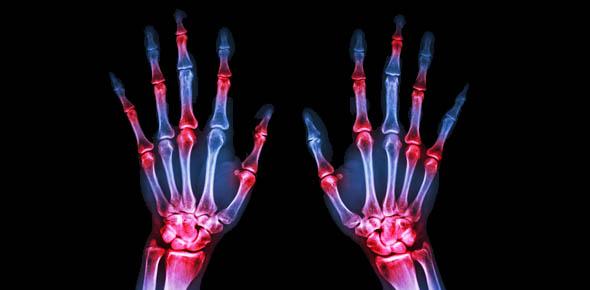 rheumatology Quizzes & Trivia