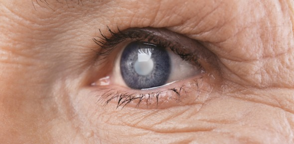 Cataract Quizzes, Cataract Trivia, Cataract Questions