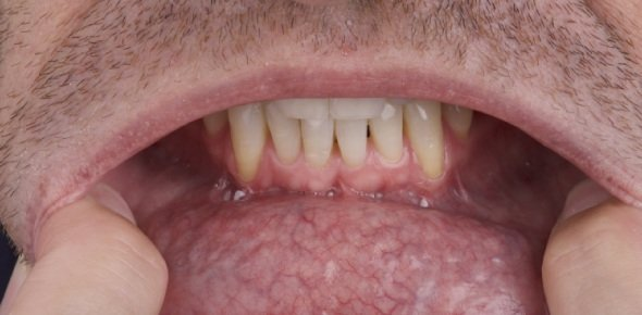Oral Cancer Quizzes & Trivia