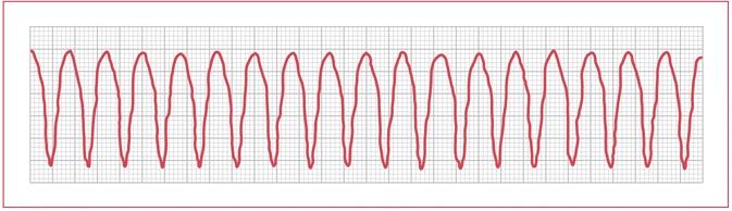 example Rhythm strip