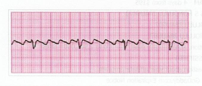 Quiz De Anestesiologia Atual