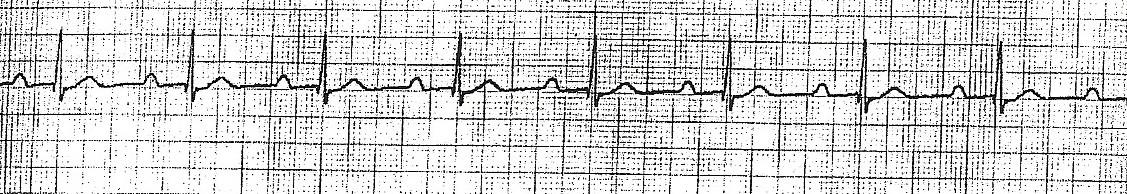 ECG Arrhythmia