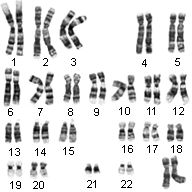 Ch. 12 Chromosomes And Human Inheritance Test Quiz
