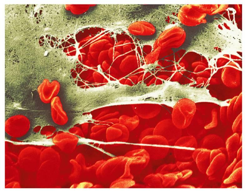 Pharm 1- Hematology Drugs