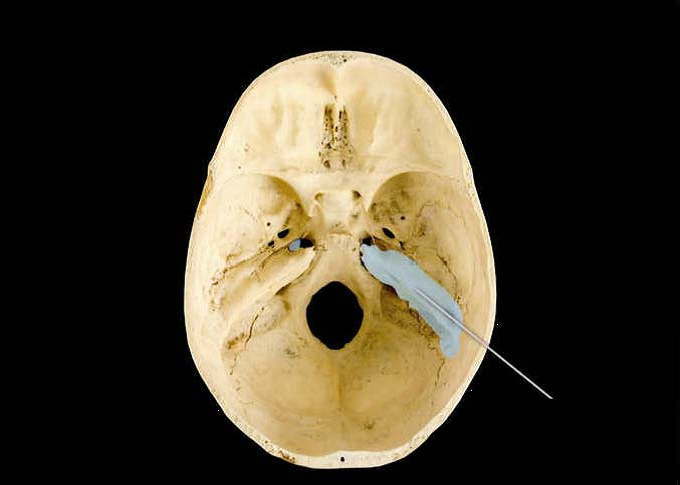 carotid canal of temporal bone - more information on bastardserver., Human body