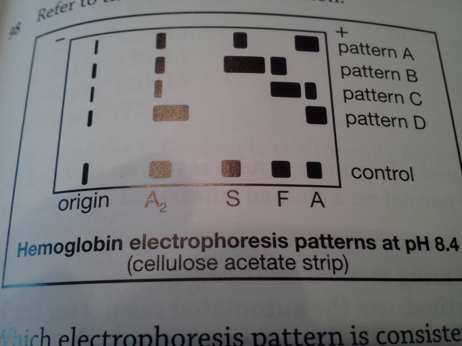 Hematology Coagulation Proprofs Quiz Electronic Symbols Flashcards Refer To The Following Illustration Which Electrophoresis Pattern Is Consistent With Sickle Cell Trait