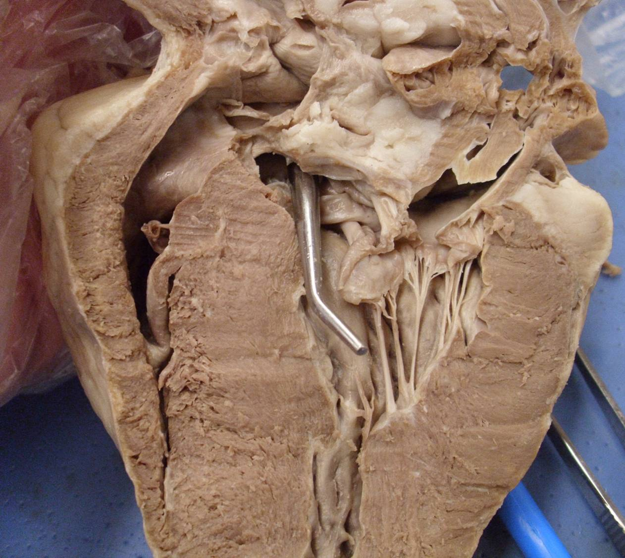 Heart model sheep heart practice quiz proprofs quiz ccuart Choice Image