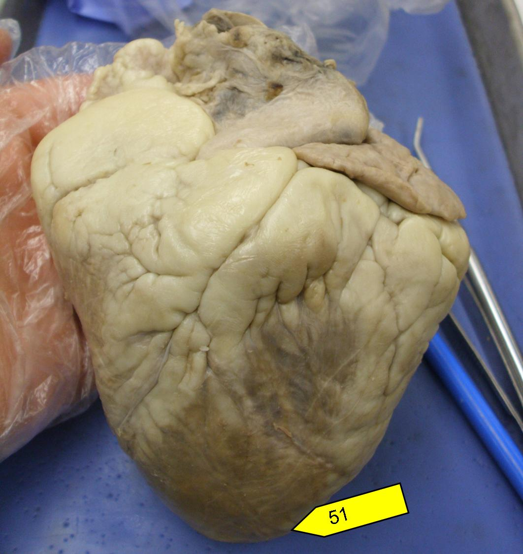Heart model sheep heart practice quiz proprofs quiz name the region of the heart ccuart Image collections